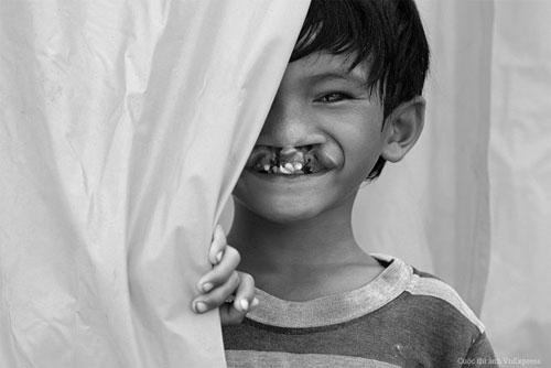 Cậu bé 'Đằng sau nụ cười' sắp được vá hàm ếch